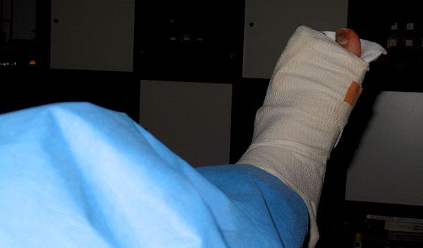 Beine gebrochen gips beide SVP