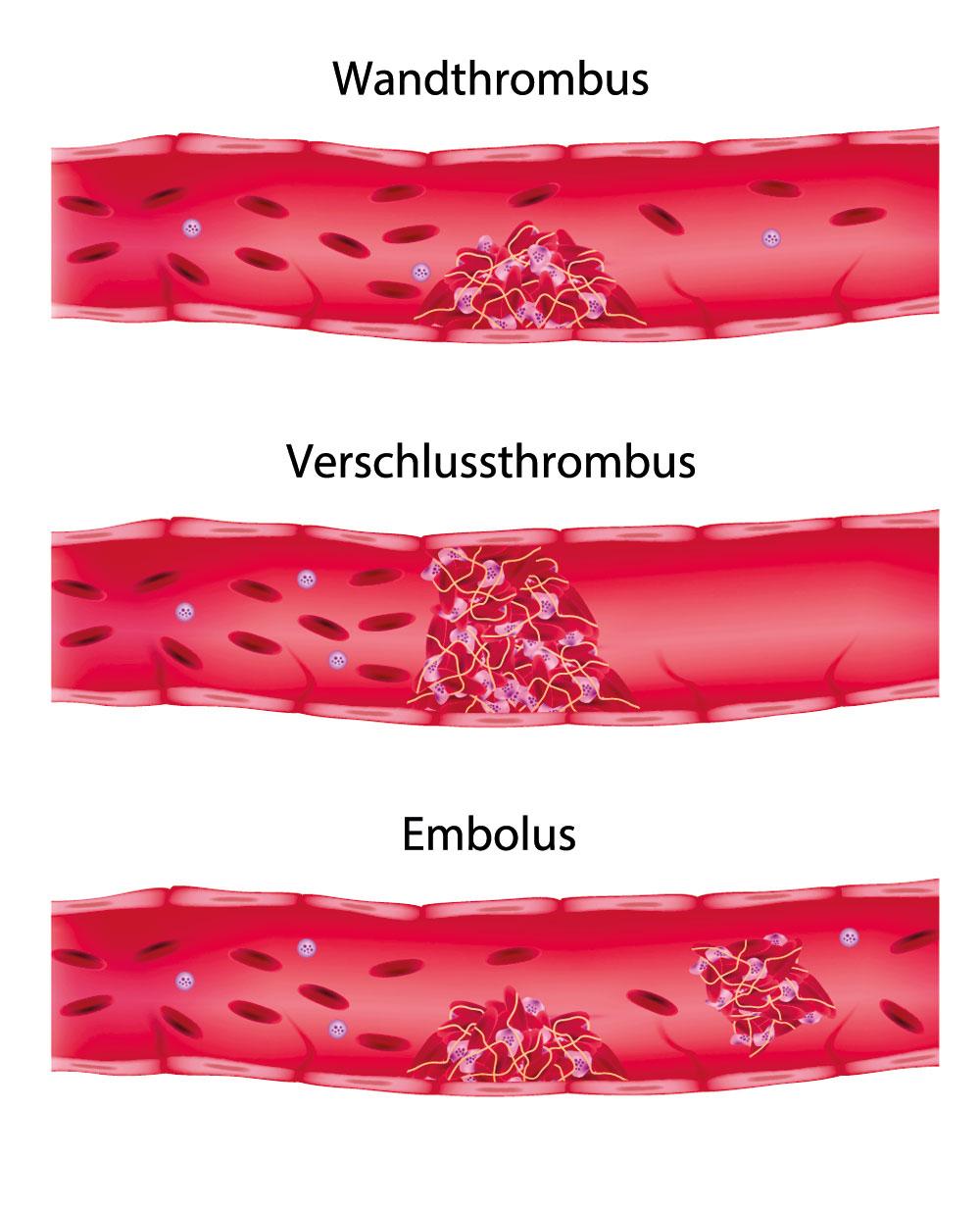 Thrombophlebitis in den Beinen Symptome und Behandlung Foto
