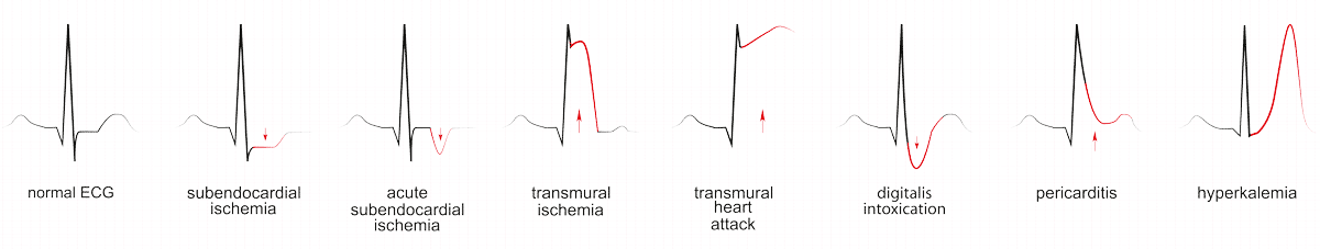 Herzinfarkt im EKG