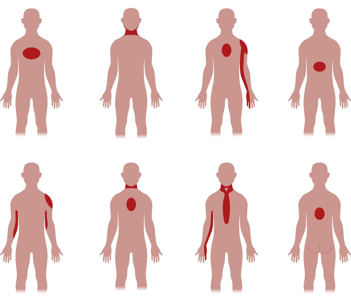 Typische Schmerz-Lokationen beim Herzinfarkt