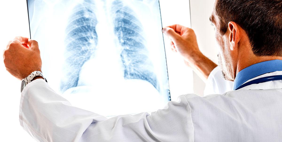 Die Ursachen an einer Nebennierenrindeninsuffizienz zu erkranken können verschieden sein. Erst einmal muss diagnostiziert werden, ob es sich um eine primäre- oder sekundäre Nebenniererindeninsuffizienz handelt.