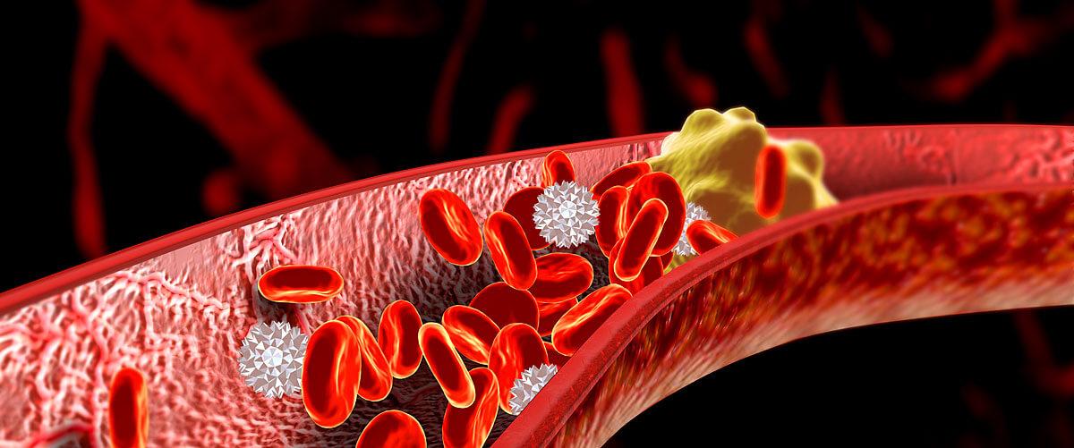 Thrombose Symptome