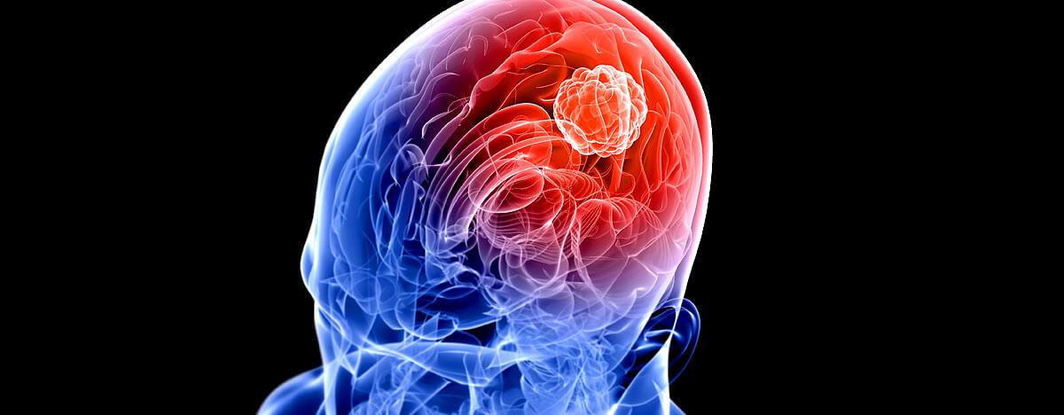 Gehirntumor Gutartig