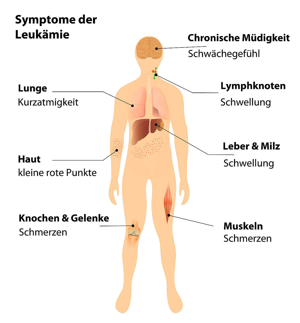 Groß Wo Sind Die Lymphknoten Ideen - Physiologie Von Menschlichen ...