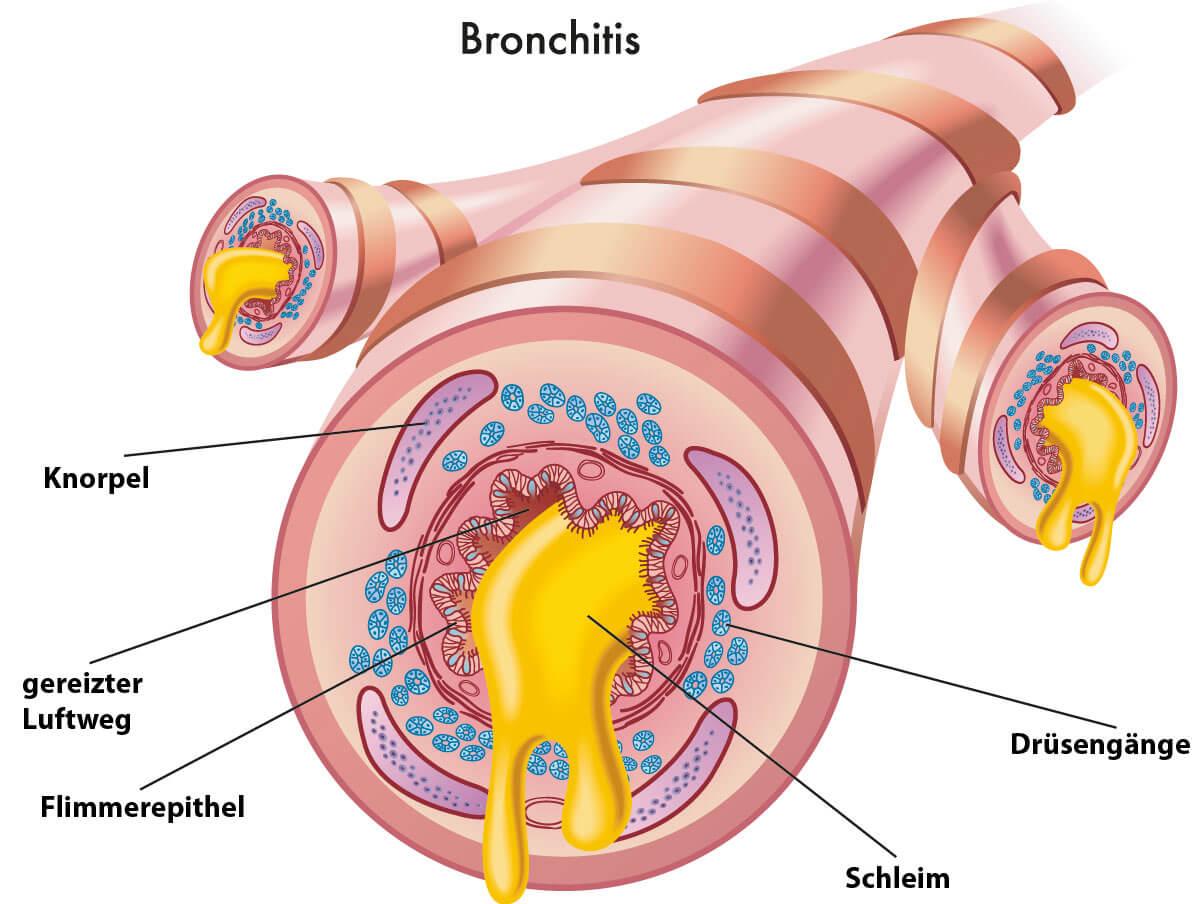 akute Bronchitis