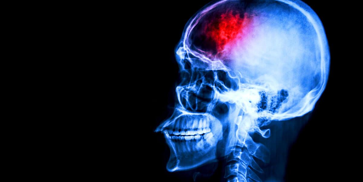 Schön Schlaganfall: Wer Die Typischen Symptome Kennt, Kann Schneller Handeln
