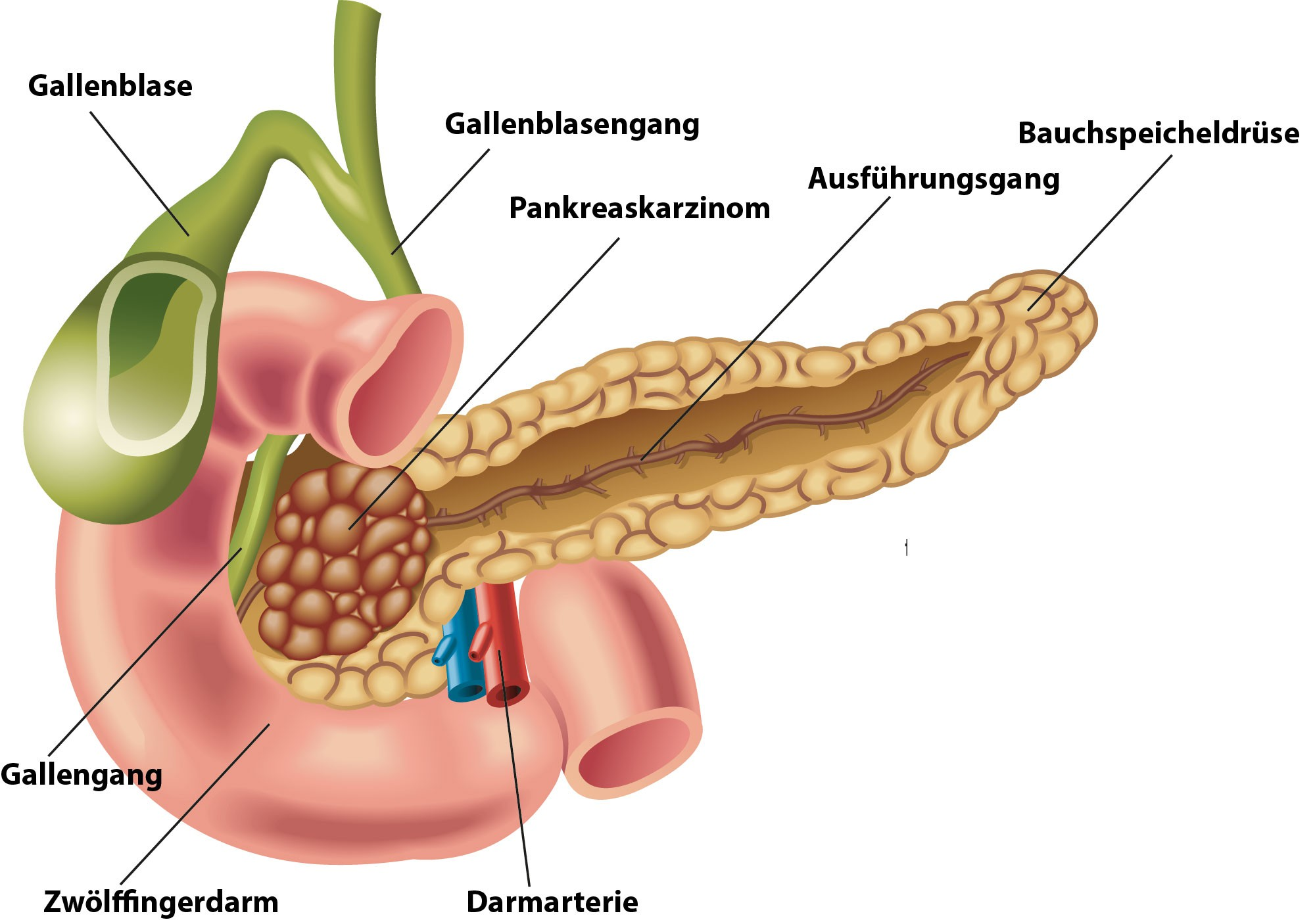≡ Bauchspeicheldrüsenkrebs ▷ Symptome, Lebenserwartung, Ursache ...