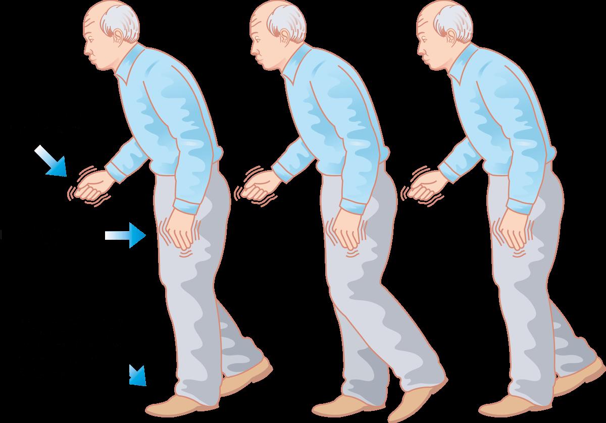 Parkinson Erkennen