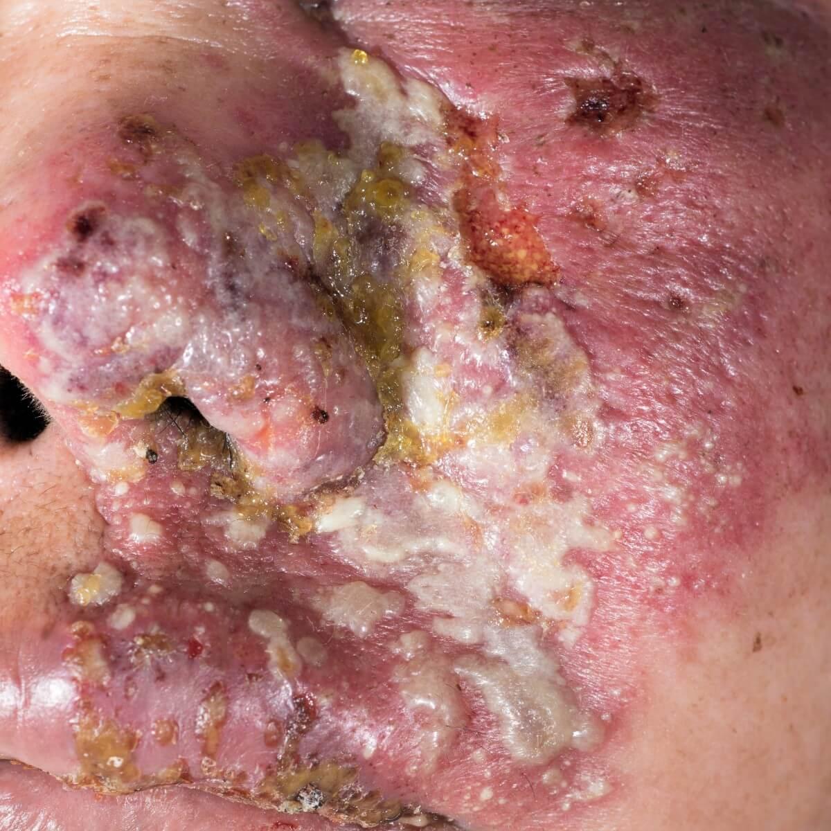 Gürtelrose / Herpes Zoster Infektion im Gesicht