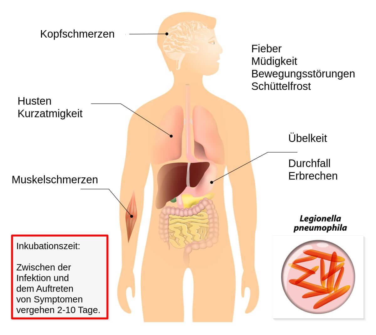 Was ist eine Brust-Infektion? - pckarlnet