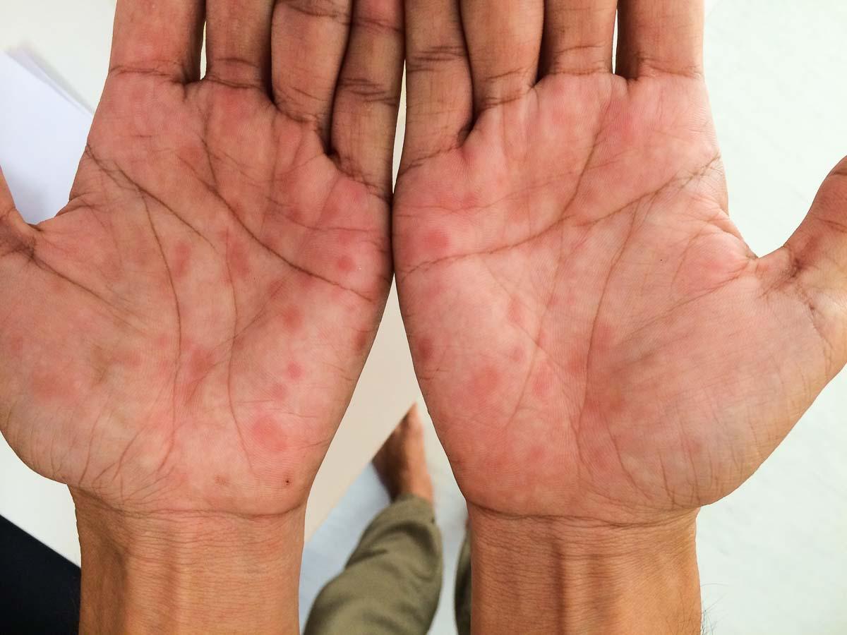Syphilis Sekundärstadium  / Handflächen