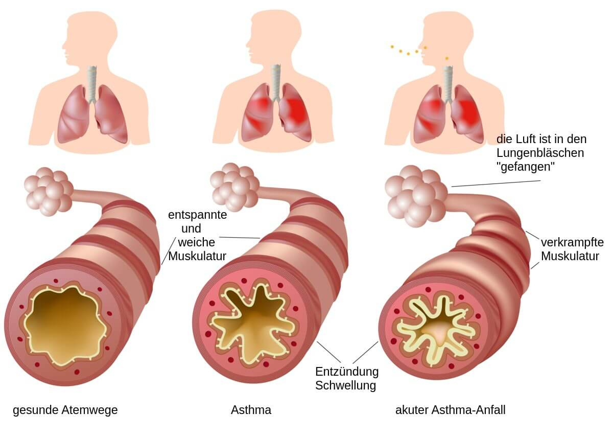 ist asthma heilbar