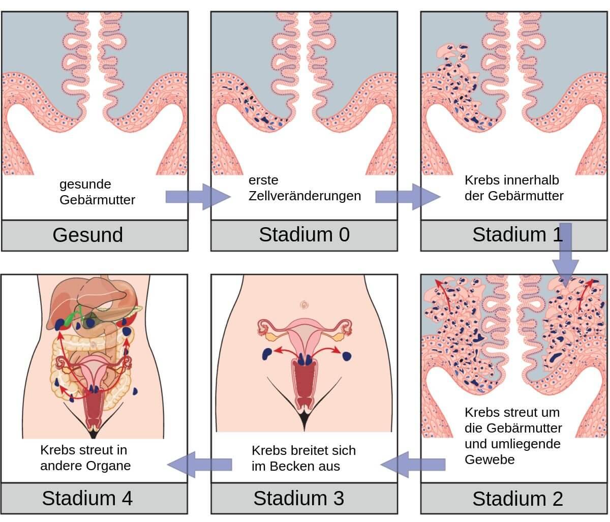 Gebärmutterkrebs 22 Symptome Und Anzeichen Was Tun