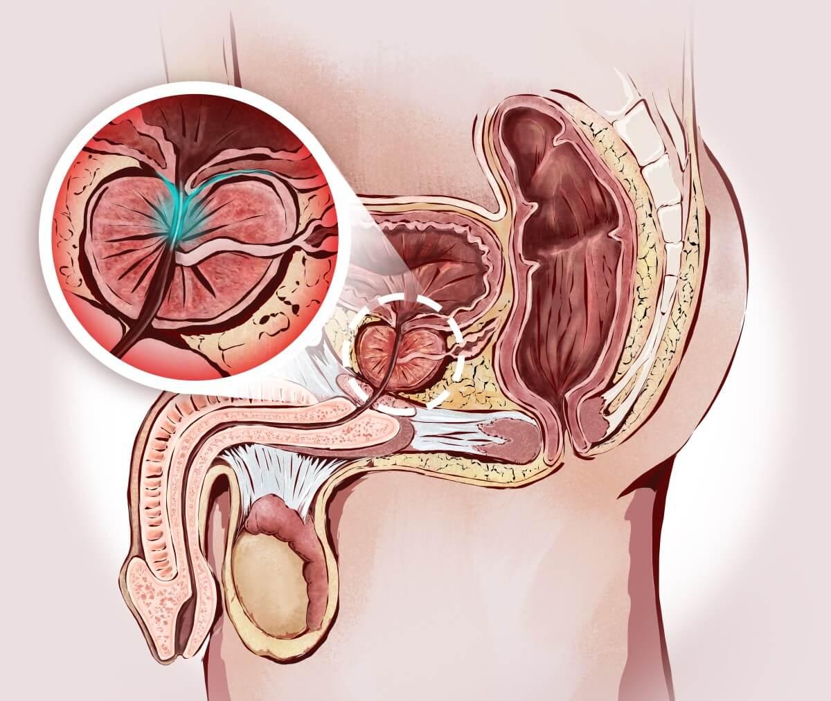 Die Lage der Prostata im menschlichen Körper