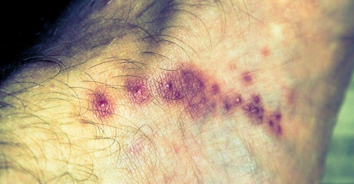Lokale Hautreaktion auf Krätze-Befall