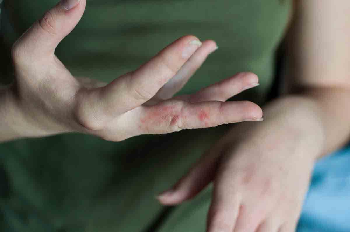 Krätze an den Fingern