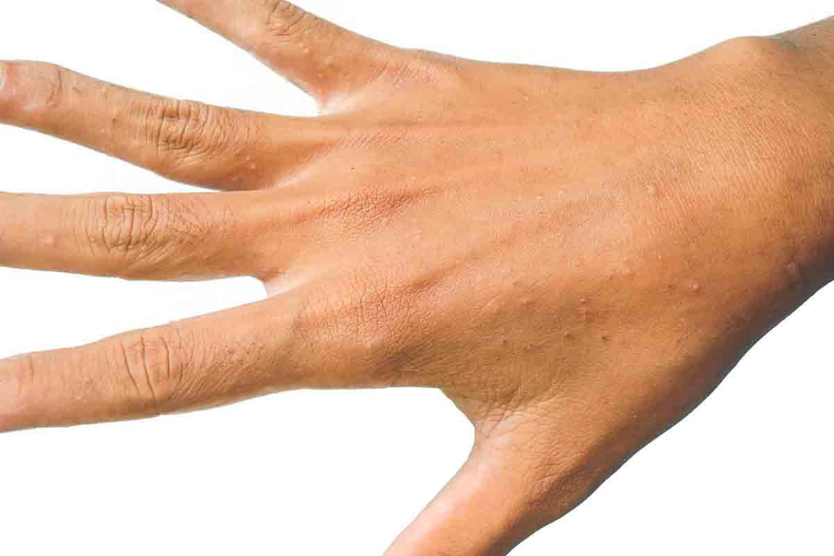Krätze an der Hand
