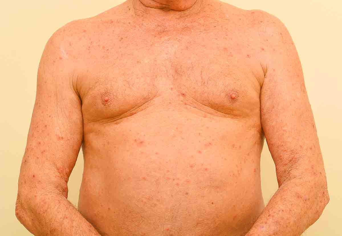 Krätze auf Brust und Bauch
