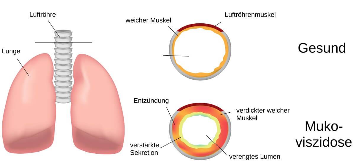 Zystische Fibrose Symptome Erwachsene