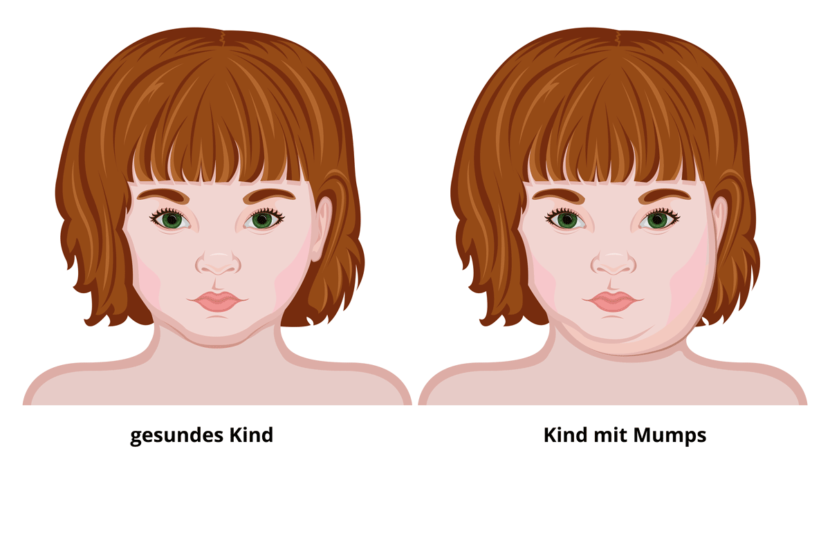 Typische Gesichtsschwellung durch Mumps