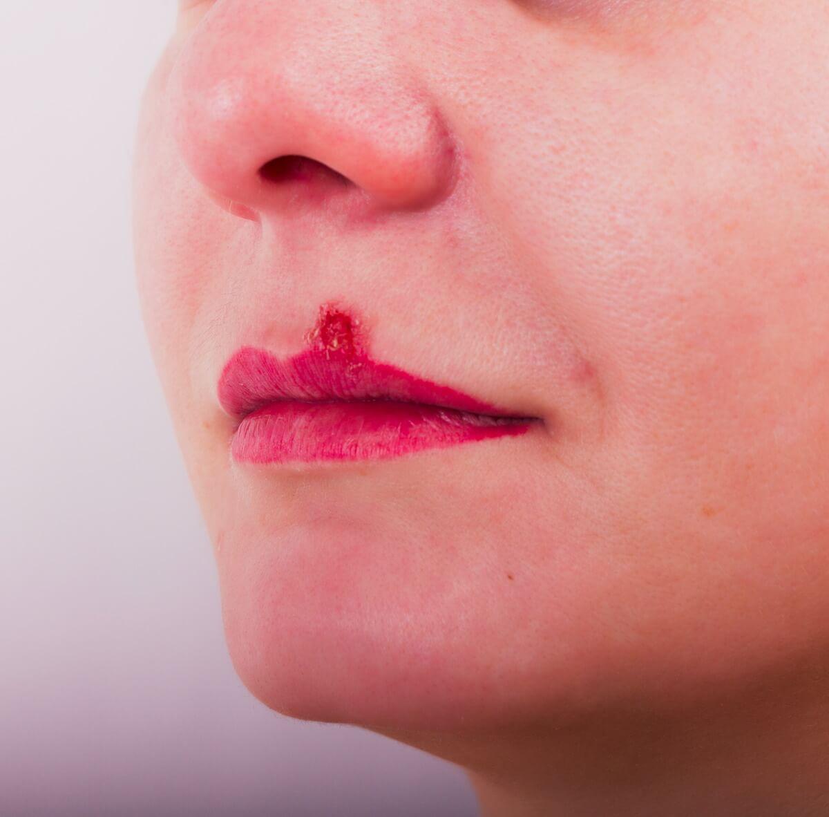 Herpes Simplex Ausbruch an der Lippe (Lippenherpes)