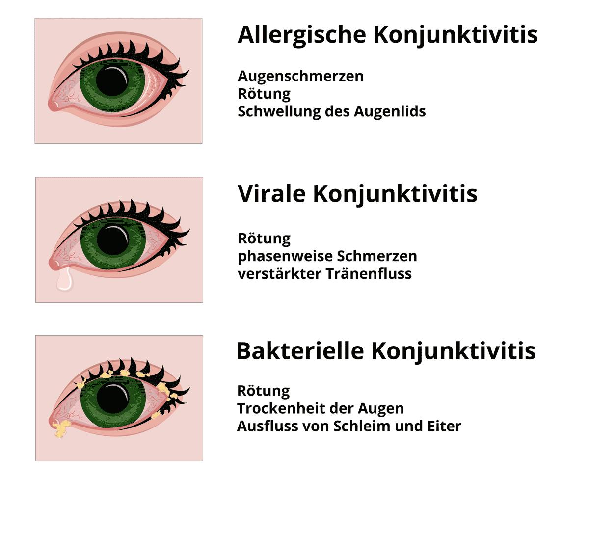 Symptome der verschiedenen Arten von Bindehautentzündung