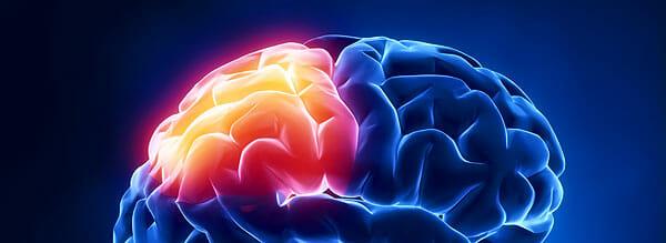 Temodal / Temozolomid wird gegen Hirntumore eingesetzt