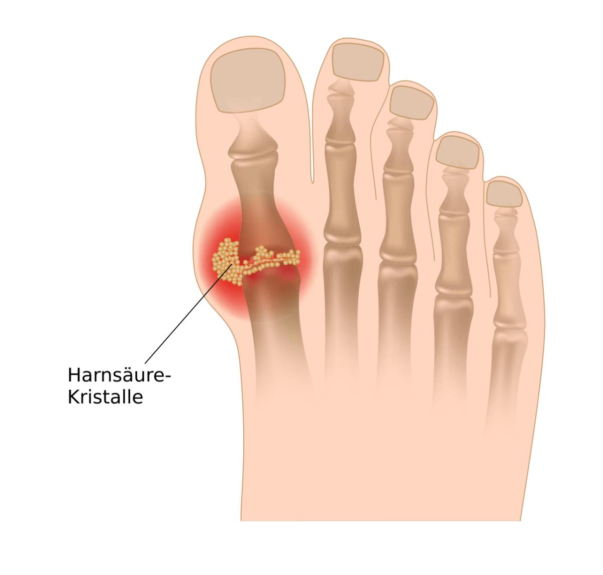 Die Gicht führt zur Ablagerung von Harnsäure-Kristallen in den Gelenken