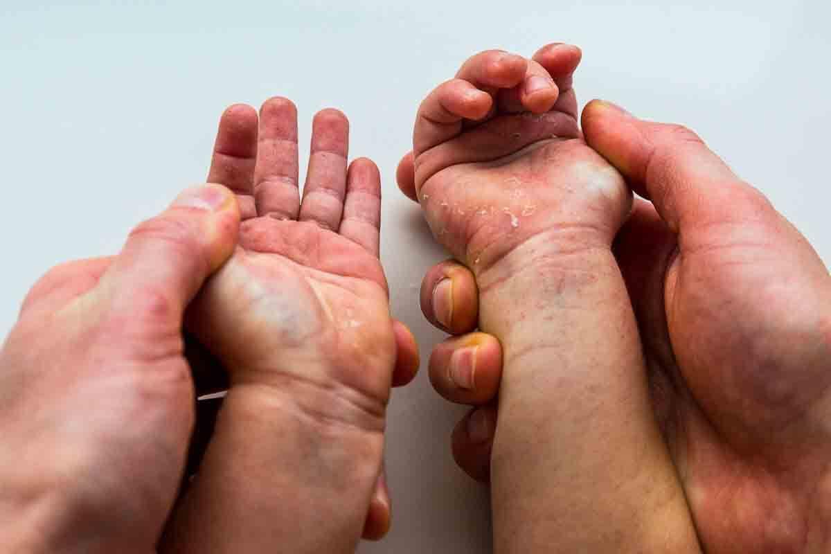 Scharlach: Hände pellen sich