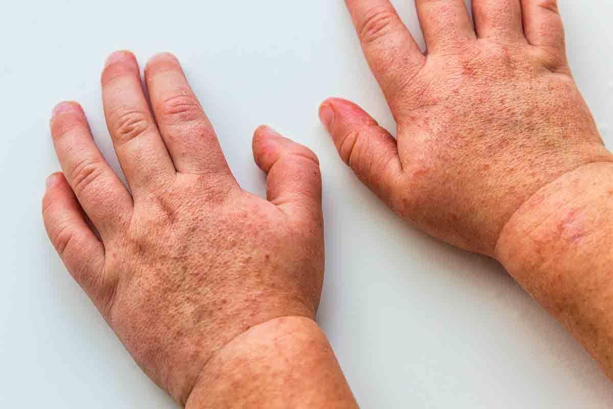 Scharlach - Ausschlag an den Händen