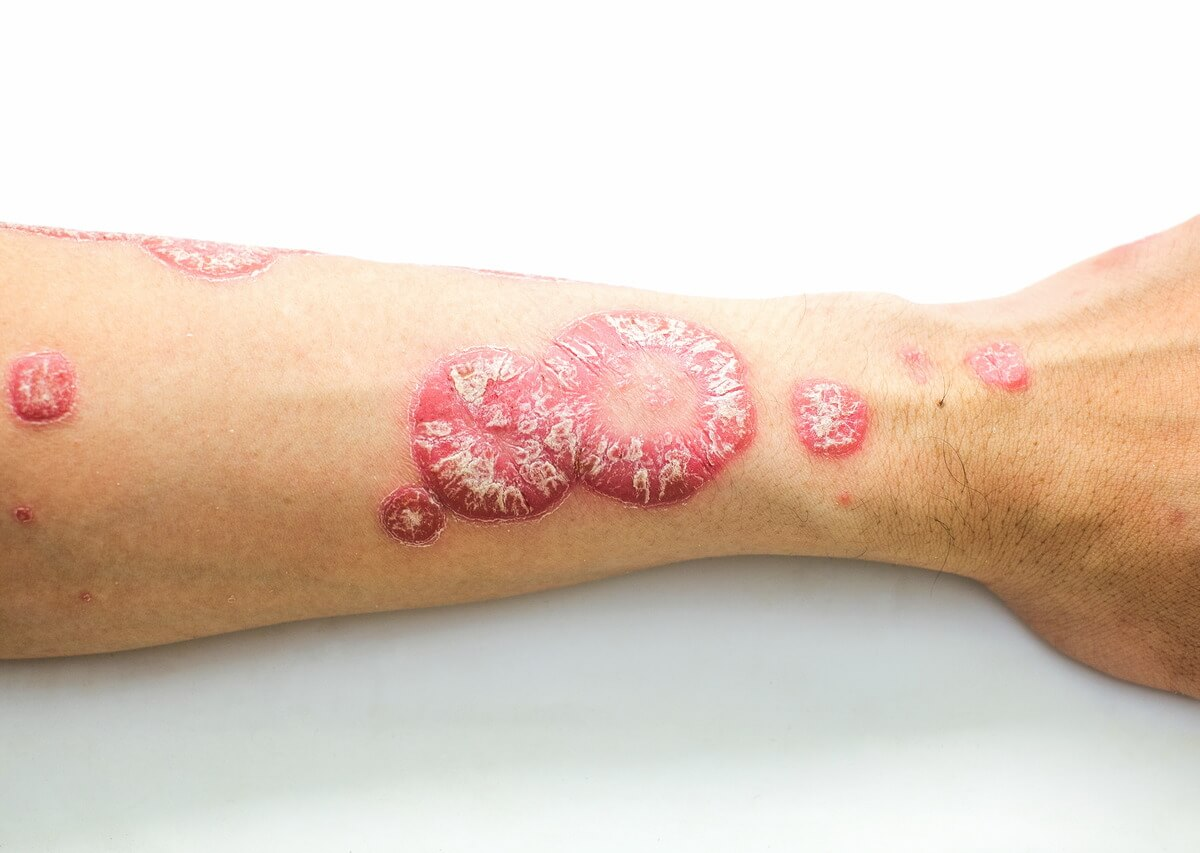 Schuppenflechte am Arm