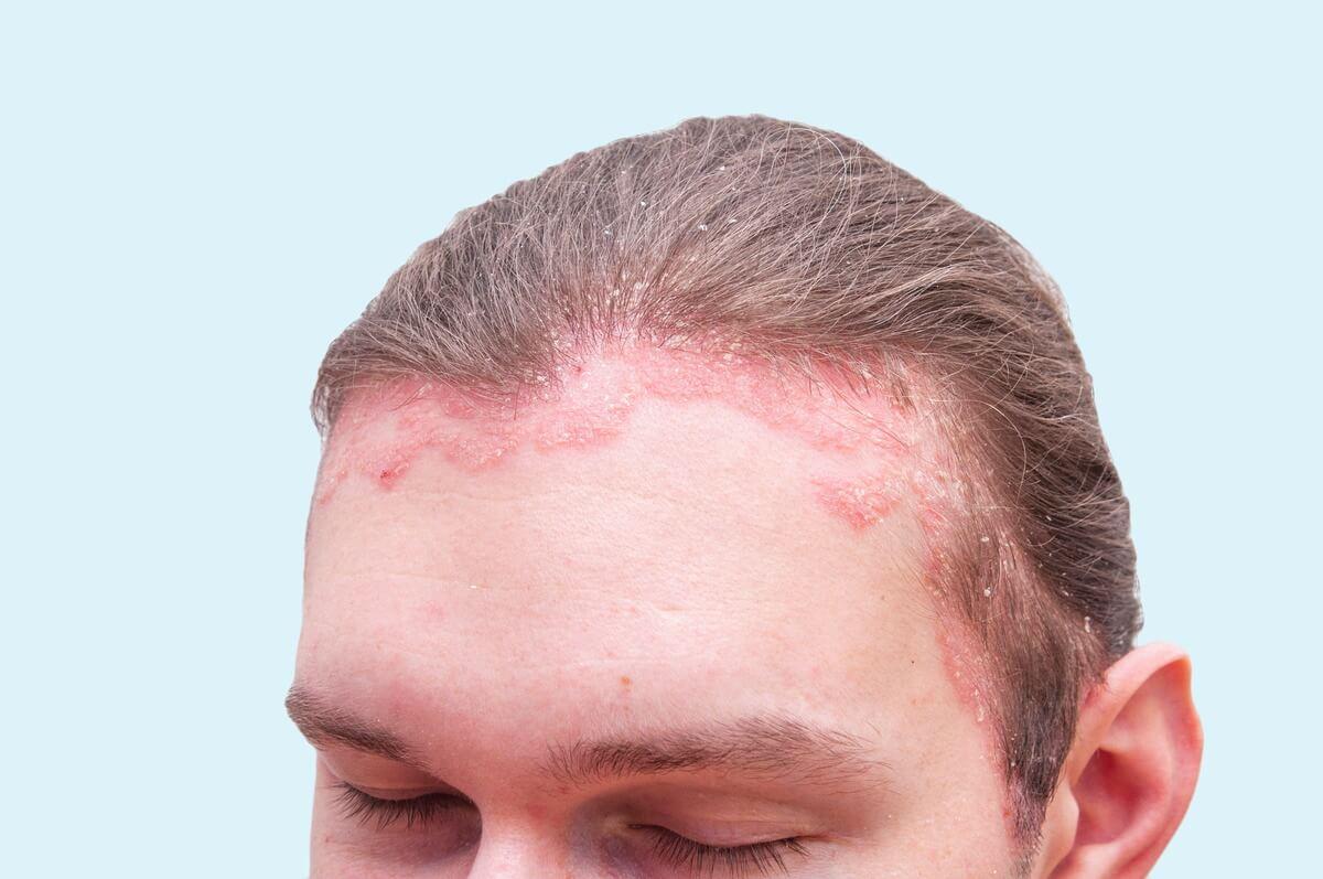 Schuppenflechte am Haaransatz
