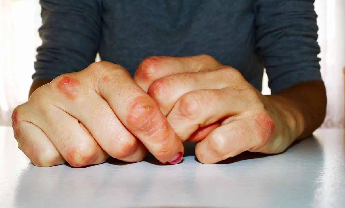 Schuppenflechte an den Händen