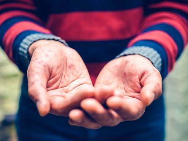 kinderkrankheit hand mund fuß