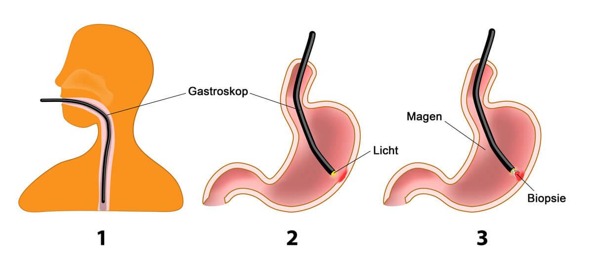 Ablauf einer Magenspiegelung