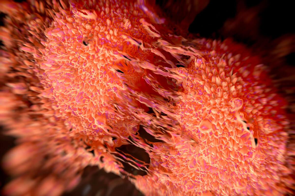 Prostatakrebs-Zellen