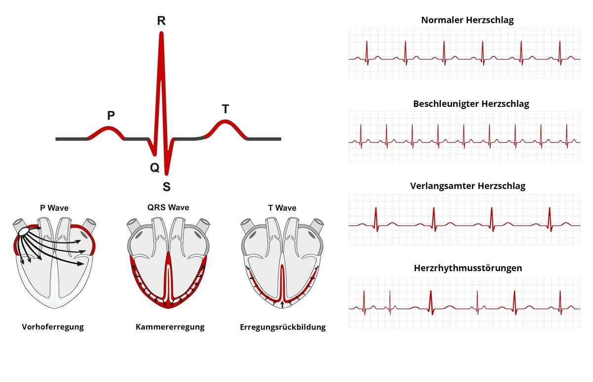 Puls - der Herzschlag im EKG