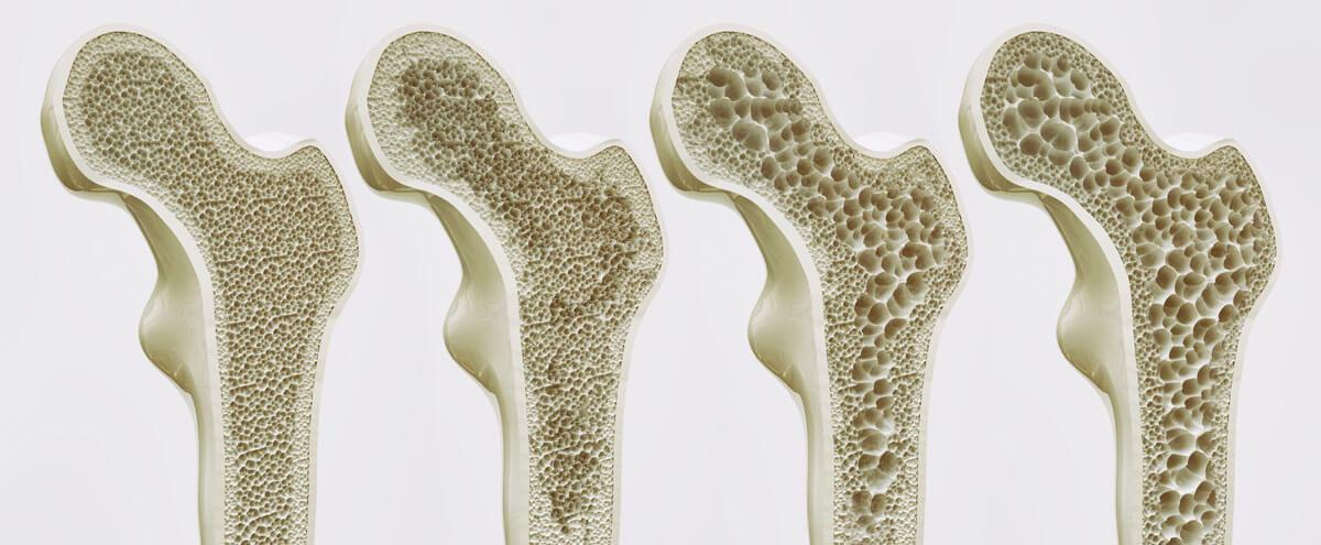 Die Stadien der Osteoporose