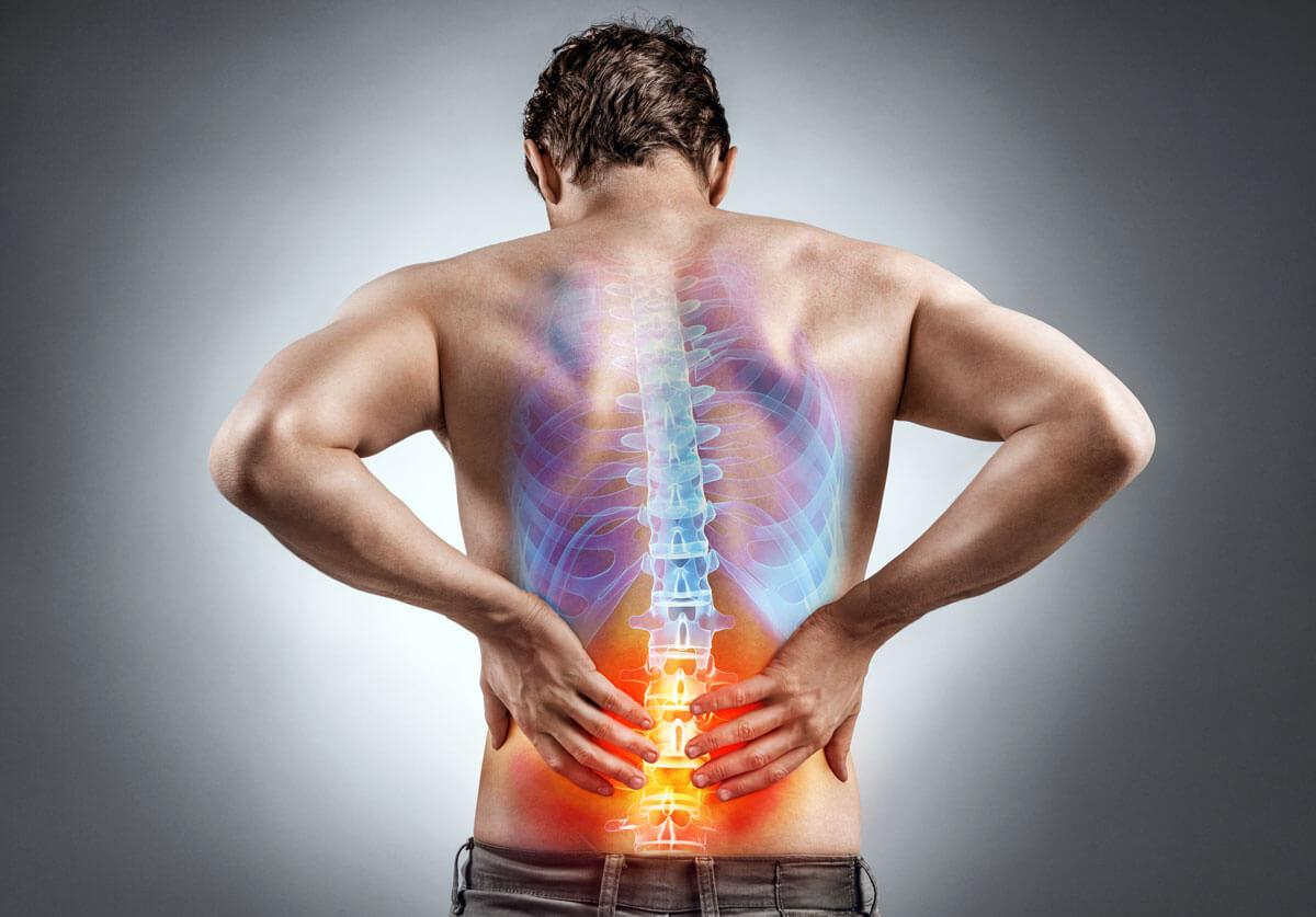 Rückenschmerzen können viele Ursachen haben