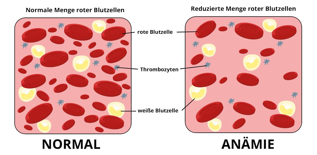 Anämie - schematische Darstellung